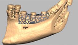 Eine weitere innovative Anwendungsmöglichkeit ist die Herstellung von 3D Knochenmodellen, auf denen Titangitter selbst gebogen und zur OP vorbereitet werden können oder gleich passgenau digital gefertigt werden. Diese Methode erlaubt vertikale Knochenaufbauten von über 1cm.