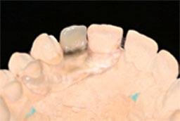 Bollack Dentaltechnik - CLEARsplint