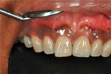 Endergebnis Bollack Dentaltechnik