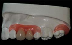 genial einfach, einfach genial - Bollack Dentaltechnik