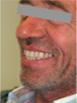 Hervorragende Ergebnisse - Dentaltechnik Bollack Heidelberg