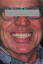 Höchster Qualitätsstandard - Dentaltechnik Bollack Heidelberg