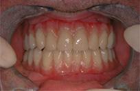 Künstliches Zahnfleisch - wie echt - Dentaltechnik Bollack