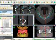 Durch unsere spezielle Schablonentechnik ist es möglich den 3D Scan in Schlussbisslage durchzuführen. Das bietet Ihnen bisher ungeahnte Sichtweisen auf Ihr Implantationsfeld.