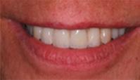 Tragekomfort Dentaltechnik Bollack Heidelberg